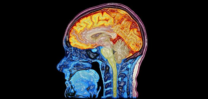 MRI scan mozgu Autor: Mark Lythgoe & Chloe Hutton. Wellcome Images, http://images.wellcome.ac.uk