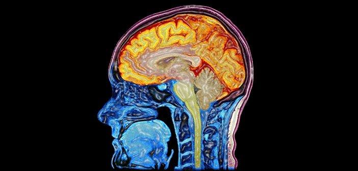 MRI scan mozgu Autor: Mark Lythgoe & Chloe Hutton. Wellcome Images, http://images.wellcome.ac.uk